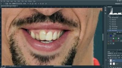 Voici à quoi ressemblerait Franck Ribéry sans ses cicatrices grâce à une séance de Photoshop