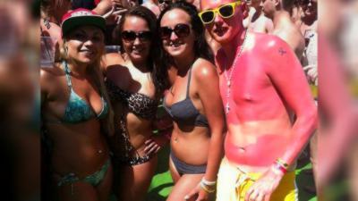 20 coups de soleils qui vont vous faire mal rien qu'en les regardants