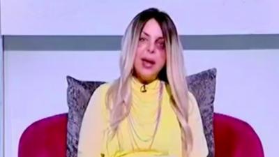 Une journaliste égyptienne présente son émission de télé avec le visage couvert de bleus