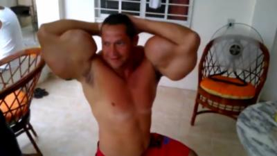 Un homme qui a beaucoup trop abusé des injections dans les muscles