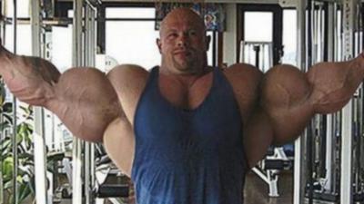 27 Bodybuildeurs qui ont un peu trop forcé sur la musculation
