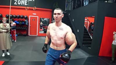 Popeye, l'homme aux bras chargés au Synthol fait son premier combat MMA